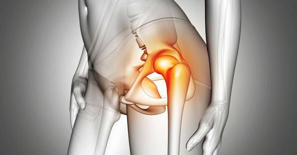 derékfájás és csípőízület coxarthrosis